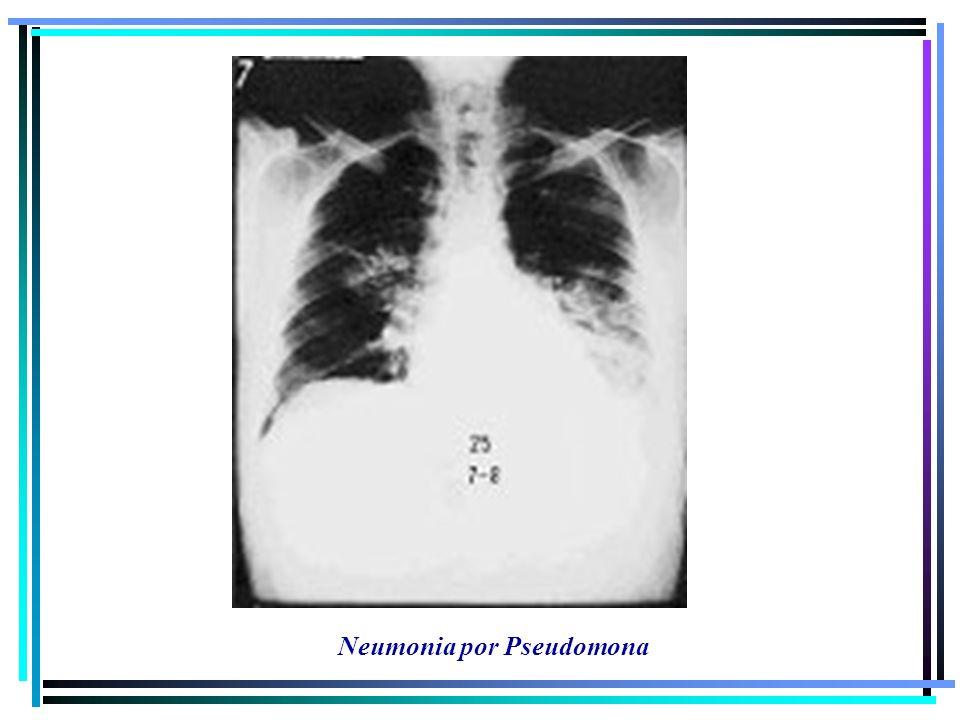 Neumonia por Pseudomona