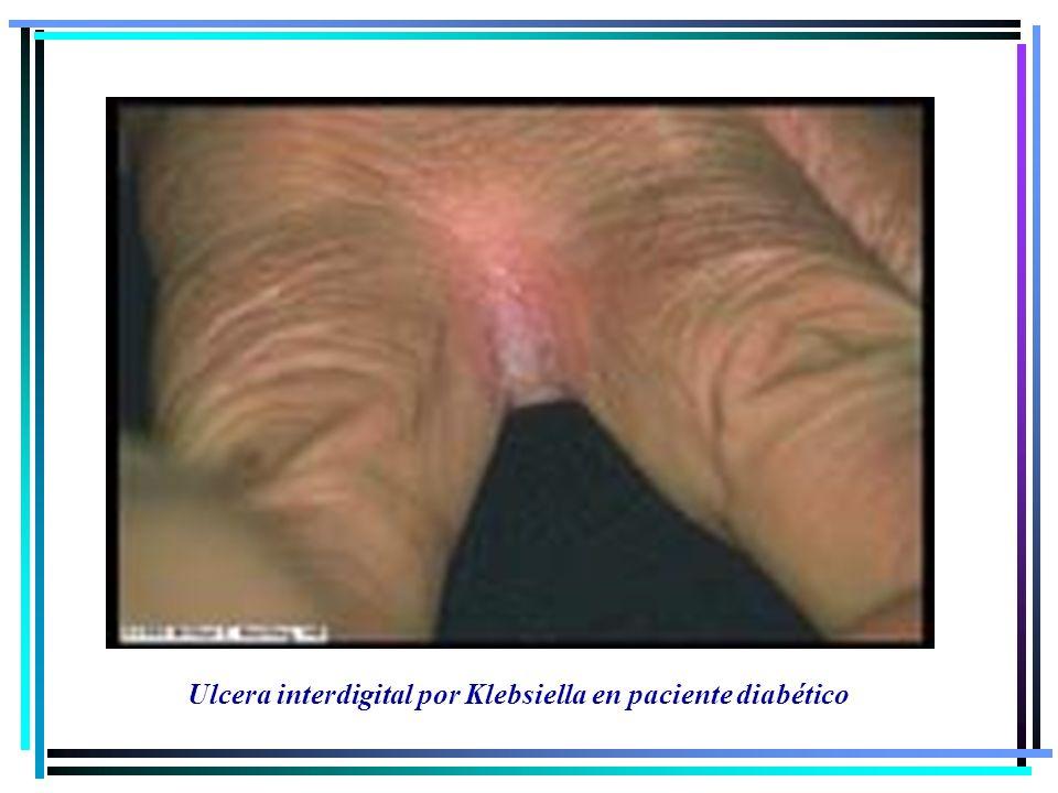 Ulcera interdigital por Klebsiella en paciente diabético
