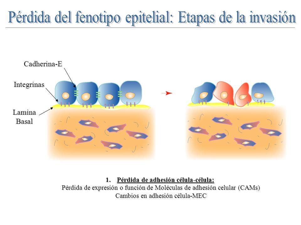 Pérdida del fenotipo epitelial: Etapas de la invasión