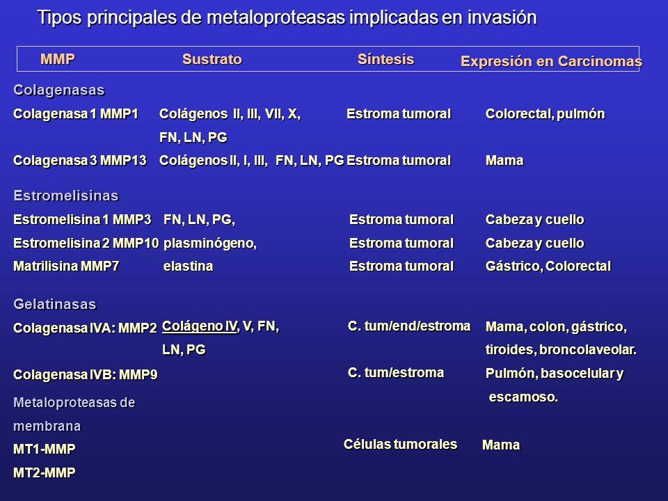 Expresión en Carcinomas