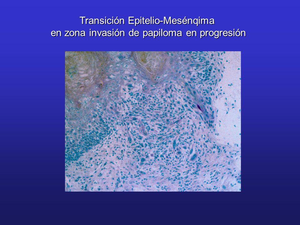 Transición Epitelio-Mesénqima