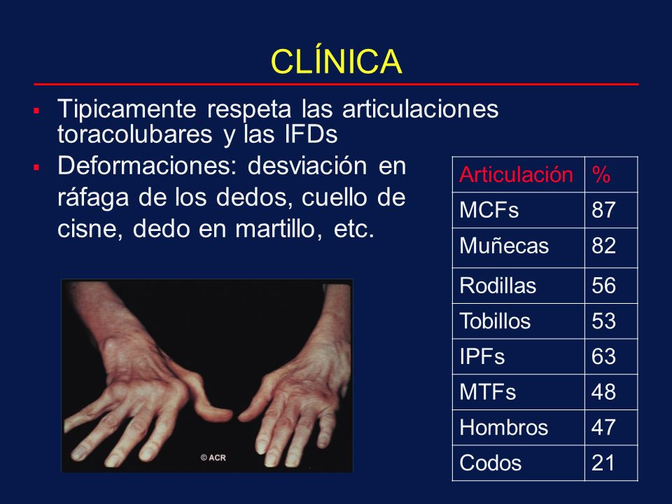 CLÍNICA Tipicamente respeta las articulaciones toracolubares y las IFDs. Deformaciones: desviación en.