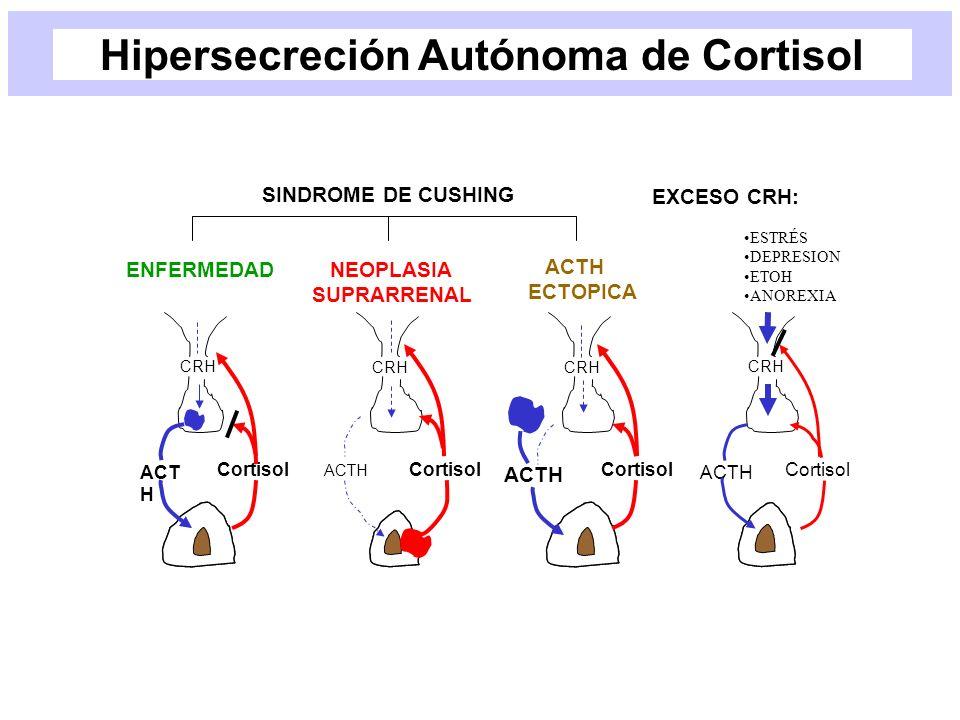 Hipersecreción Autónoma de Cortisol