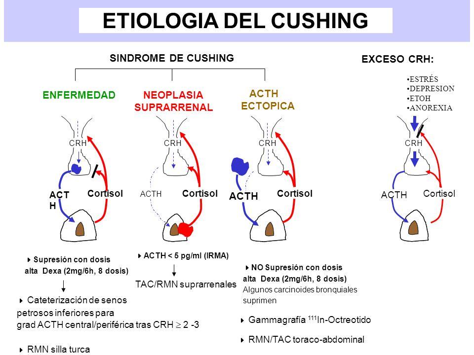 ETIOLOGIA DEL CUSHING SINDROME DE CUSHING ENFERMEDAD