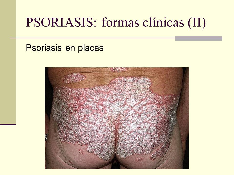 PSORIASIS: formas clínicas (II)