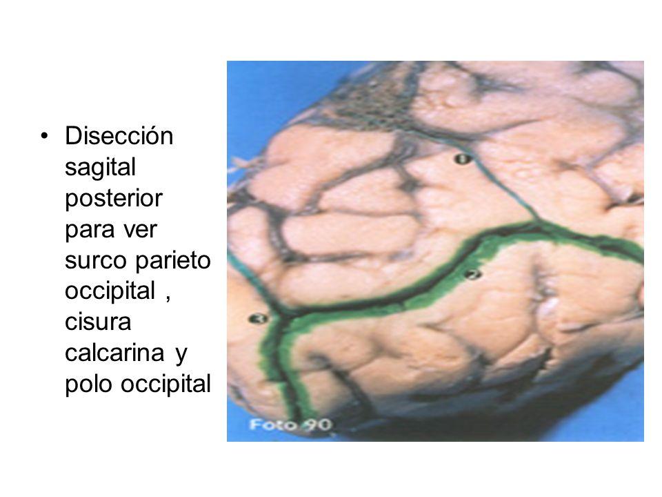 Disección sagital posterior para ver surco parieto occipital , cisura calcarina y polo occipital
