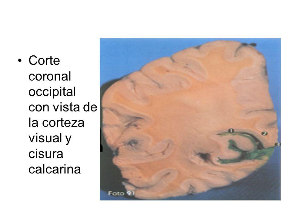 Corte coronal occipital con vista de la corteza visual y cisura calcarina