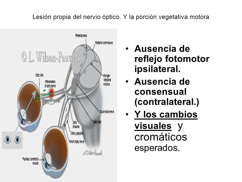 Lesión propia del nervio óptico. Y la porción vegetativa motora
