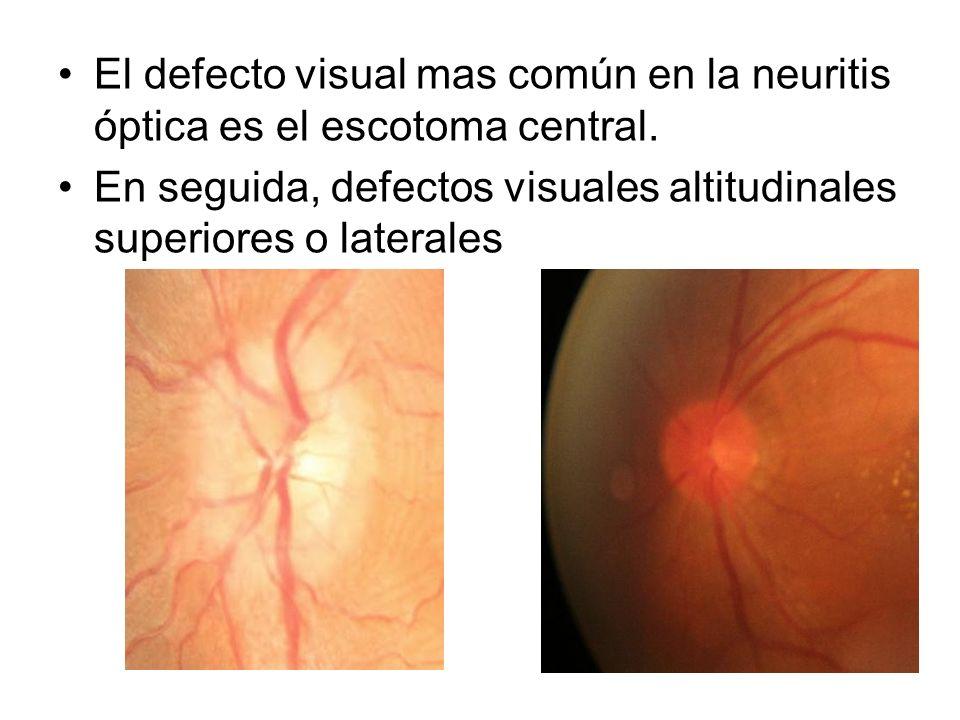 El defecto visual mas común en la neuritis óptica es el escotoma central.