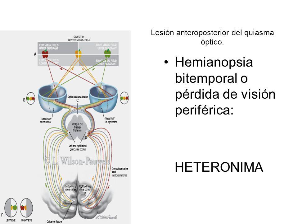 Lesión anteroposterior del quiasma óptico.