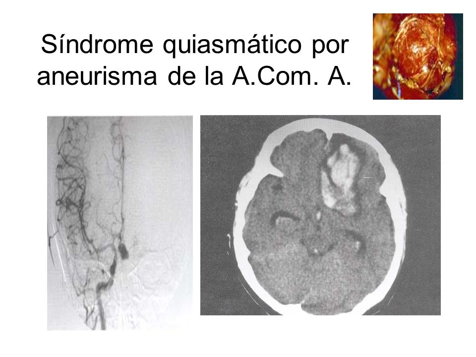 Síndrome quiasmático por aneurisma de la A.Com. A.