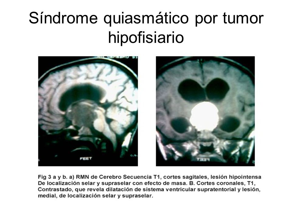 Síndrome quiasmático por tumor hipofisiario
