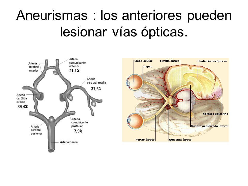Aneurismas : los anteriores pueden lesionar vías ópticas.