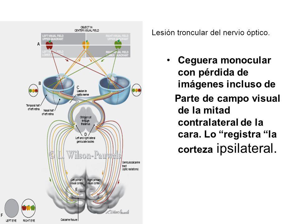 Lesión troncular del nervio óptico.
