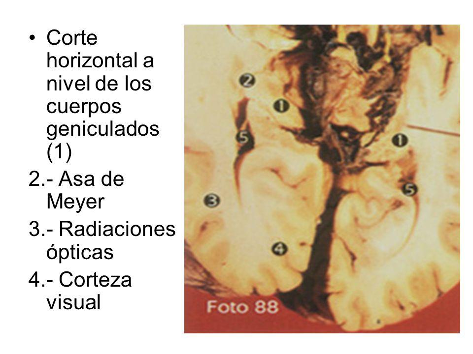 Corte horizontal a nivel de los cuerpos geniculados (1)