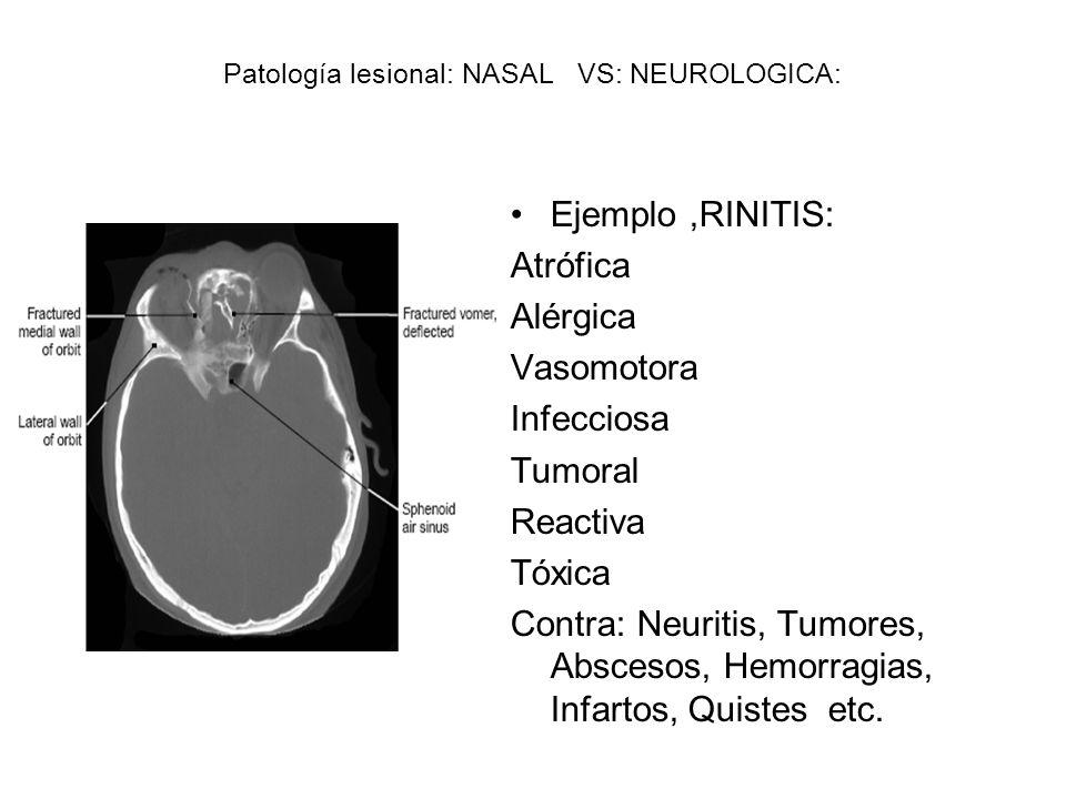Patología lesional: NASAL VS: NEUROLOGICA: