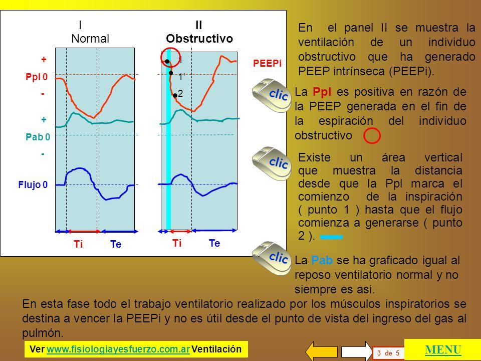 I II En el panel II se muestra la ventilación de un individuo obstructivo que ha generado PEEP intrínseca (PEEPi).