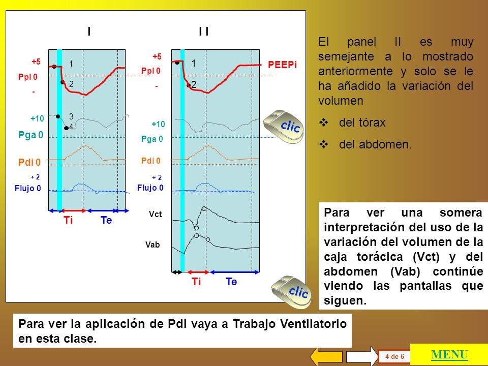 I I I. El panel II es muy semejante a lo mostrado anteriormente y solo se le ha añadido la variación del volumen.