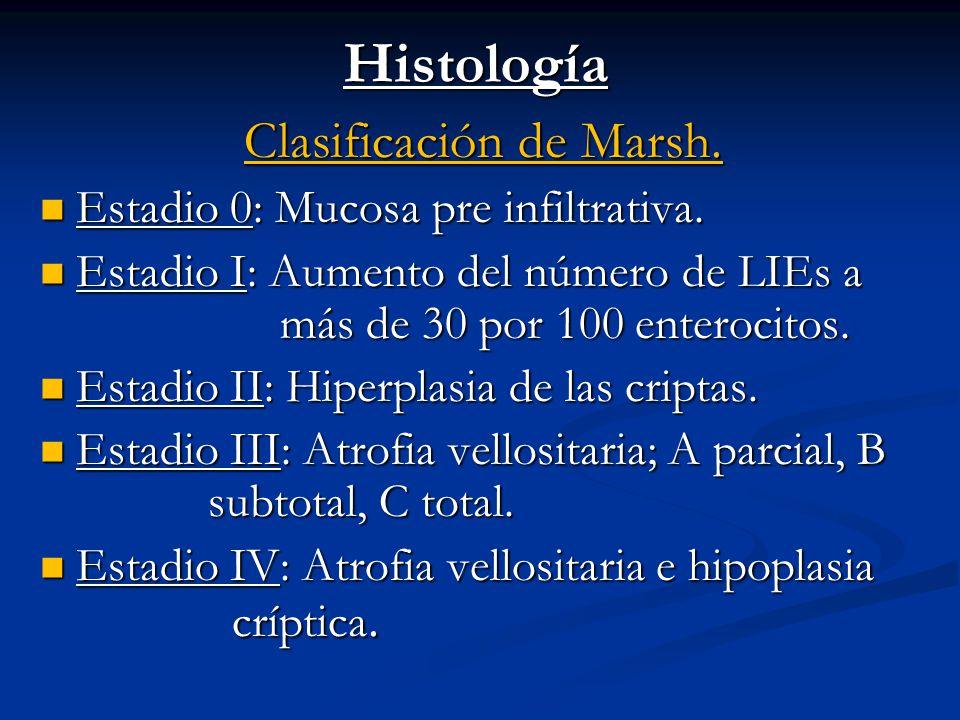 Clasificación de Marsh.