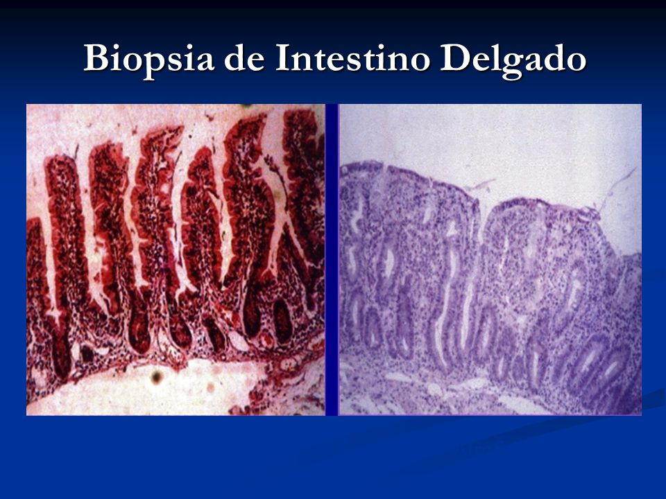 Biopsia de Intestino Delgado
