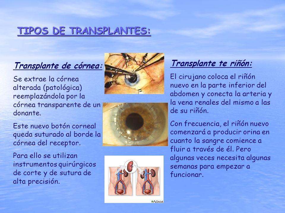 TIPOS DE TRANSPLANTES: