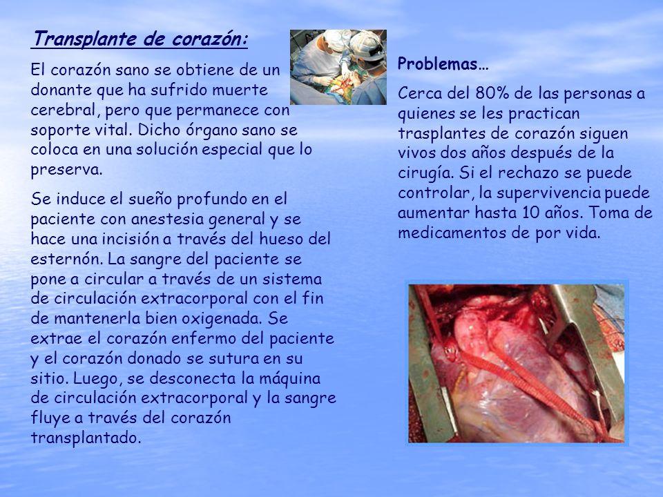 Transplante de corazón: