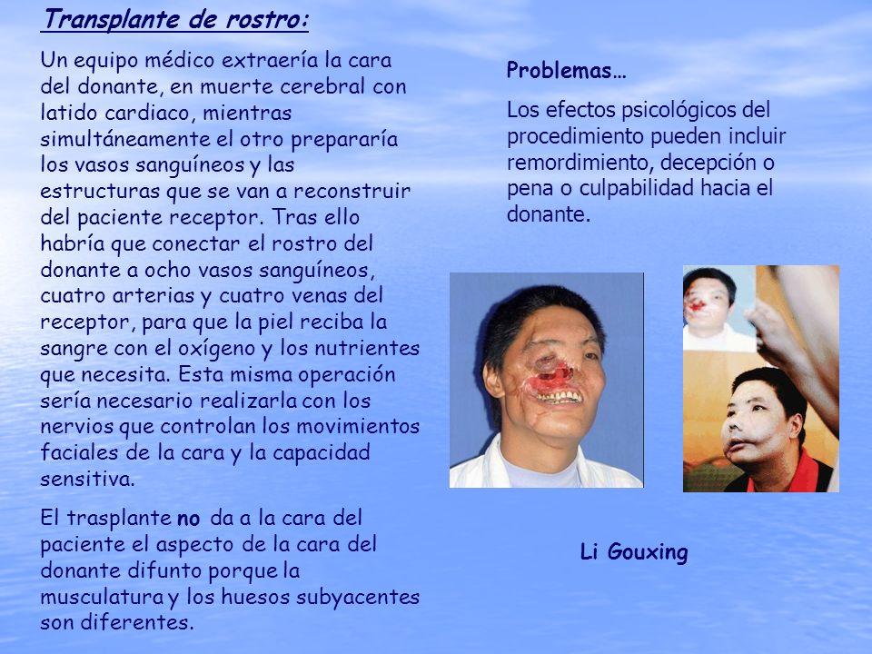 Transplante de rostro: