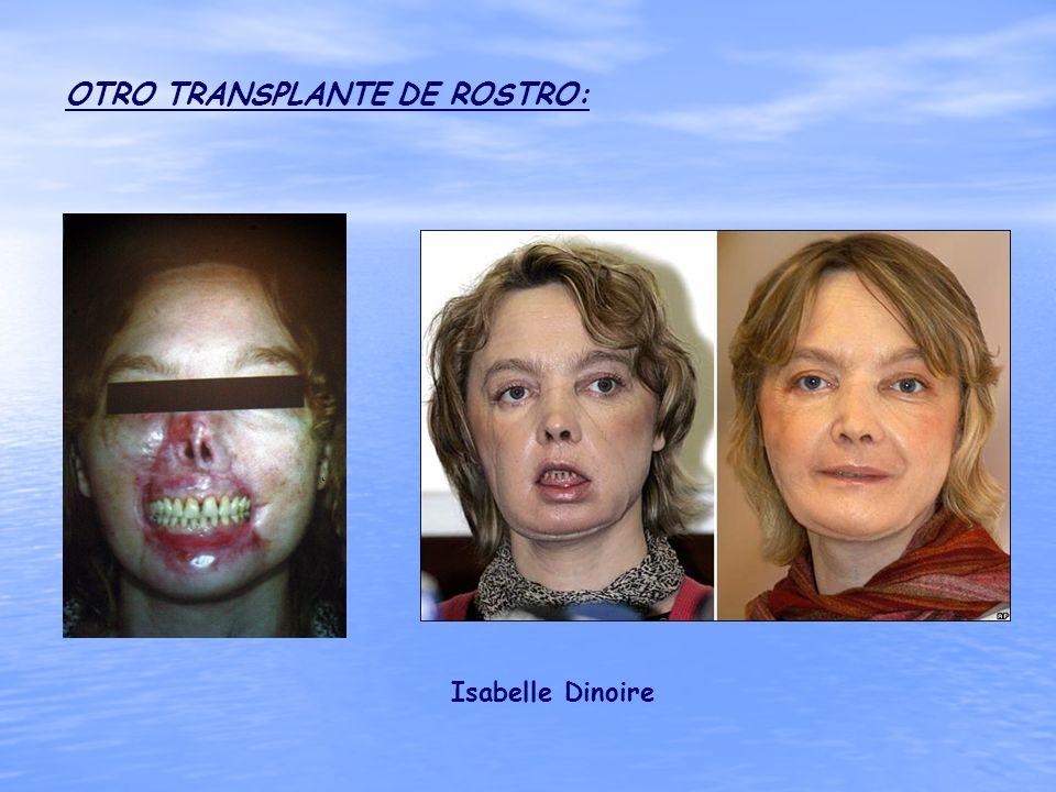 OTRO TRANSPLANTE DE ROSTRO: