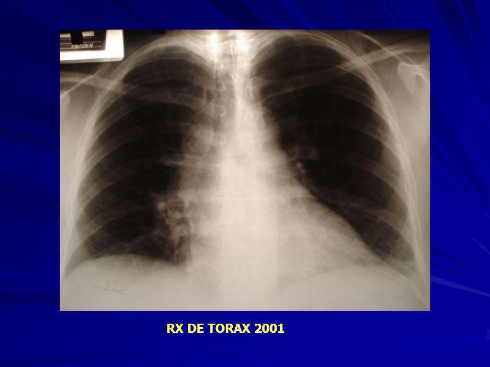 RX DE TORAX 2001