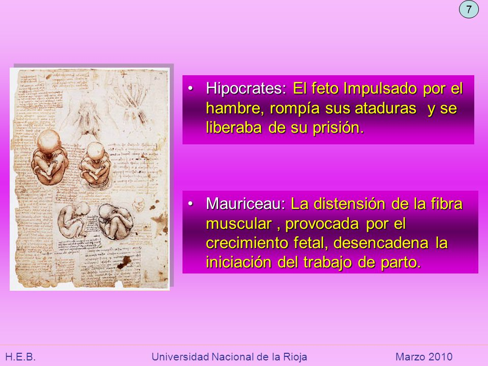 7 Hipocrates: El feto Impulsado por el hambre, rompía sus ataduras y se liberaba de su prisión.