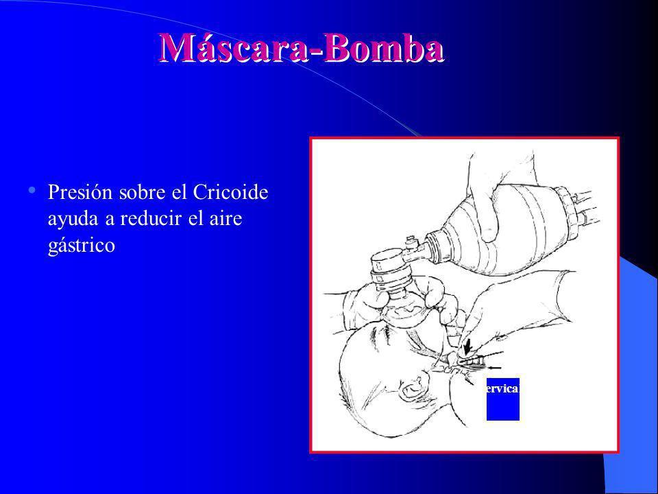 Máscara-Bomba Presión sobre el Cricoide ayuda a reducir el aire gástrico. Cricoid cartilage. Occluded esophagus.