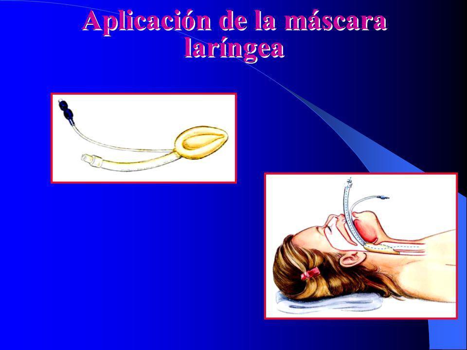 Aplicación de la máscara laríngea