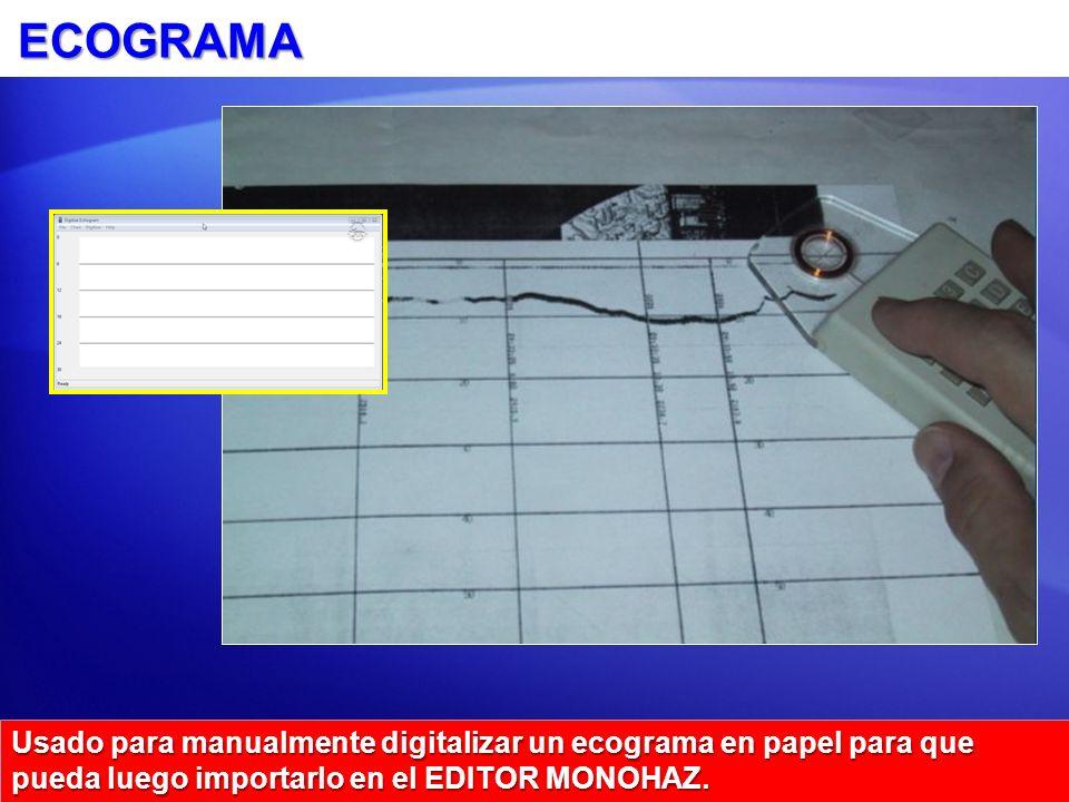 ECOGRAMA Usado para manualmente digitalizar un ecograma en papel para que pueda luego importarlo en el EDITOR MONOHAZ.