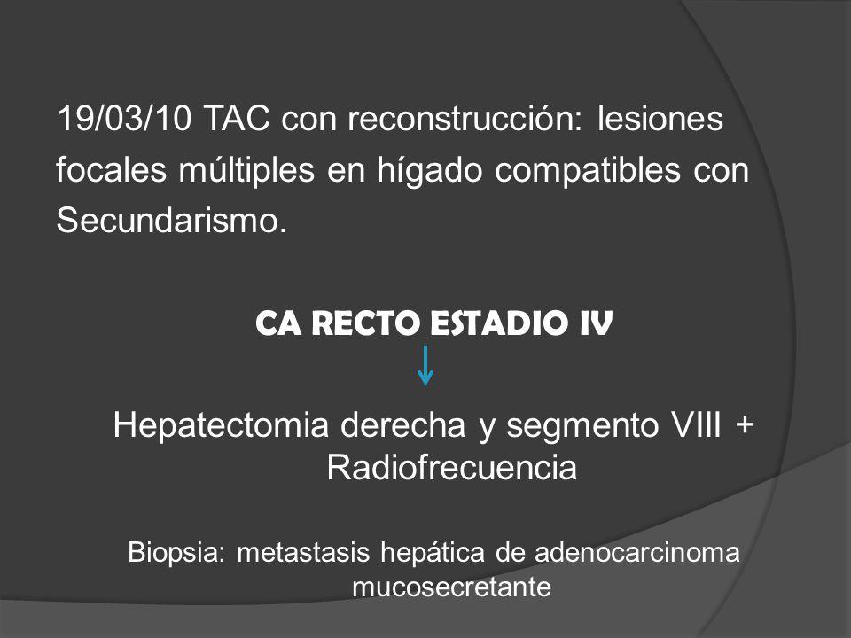 19/03/10 TAC con reconstrucción: lesiones