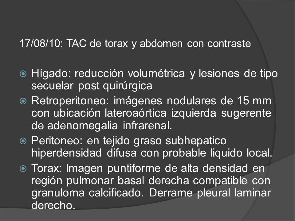 17/08/10: TAC de torax y abdomen con contraste