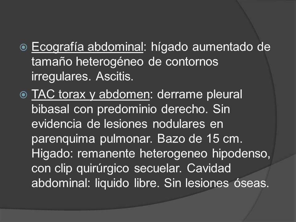 Ecografía abdominal: hígado aumentado de tamaño heterogéneo de contornos irregulares. Ascitis.