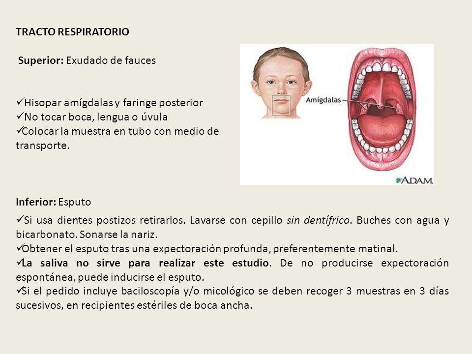 TRACTO RESPIRATORIO Superior: Exudado de fauces. Hisopar amígdalas y faringe posterior. No tocar boca, lengua o úvula.