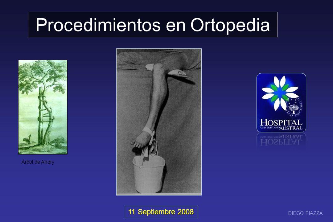 Procedimientos en Ortopedia