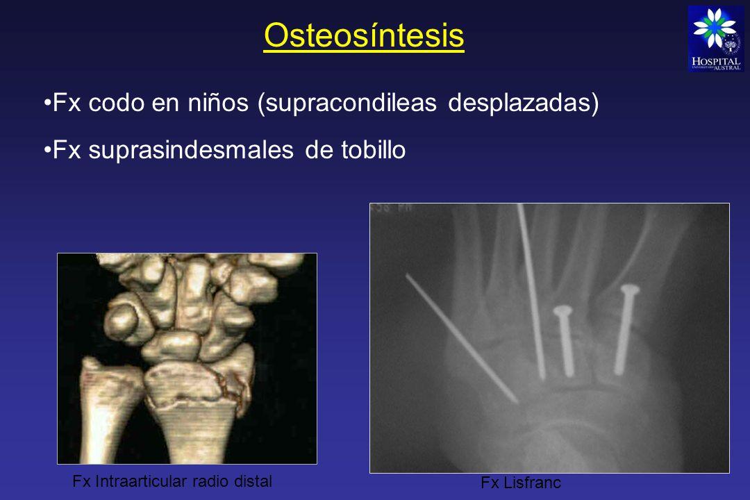 Osteosíntesis Fx codo en niños (supracondileas desplazadas)