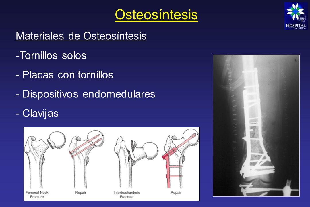 Osteosíntesis Materiales de Osteosíntesis Tornillos solos