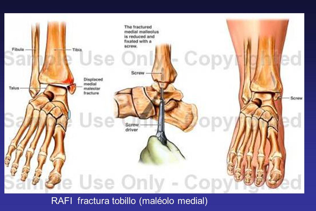 RAFI fractura tobillo (maléolo medial)