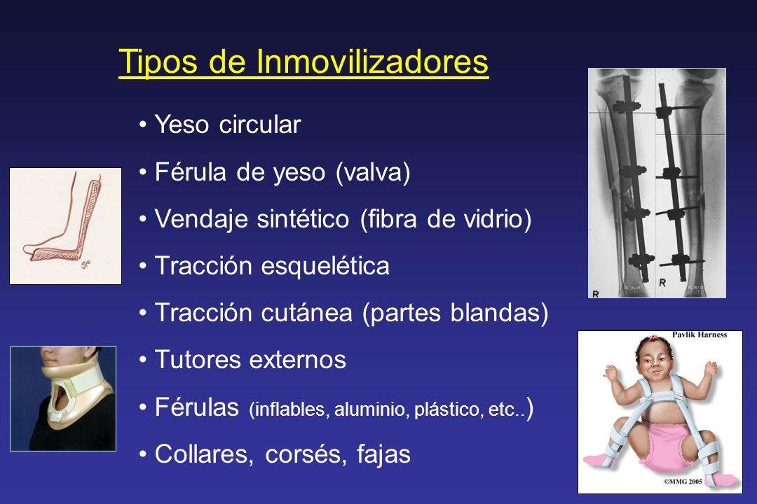 Tipos de Inmovilizadores