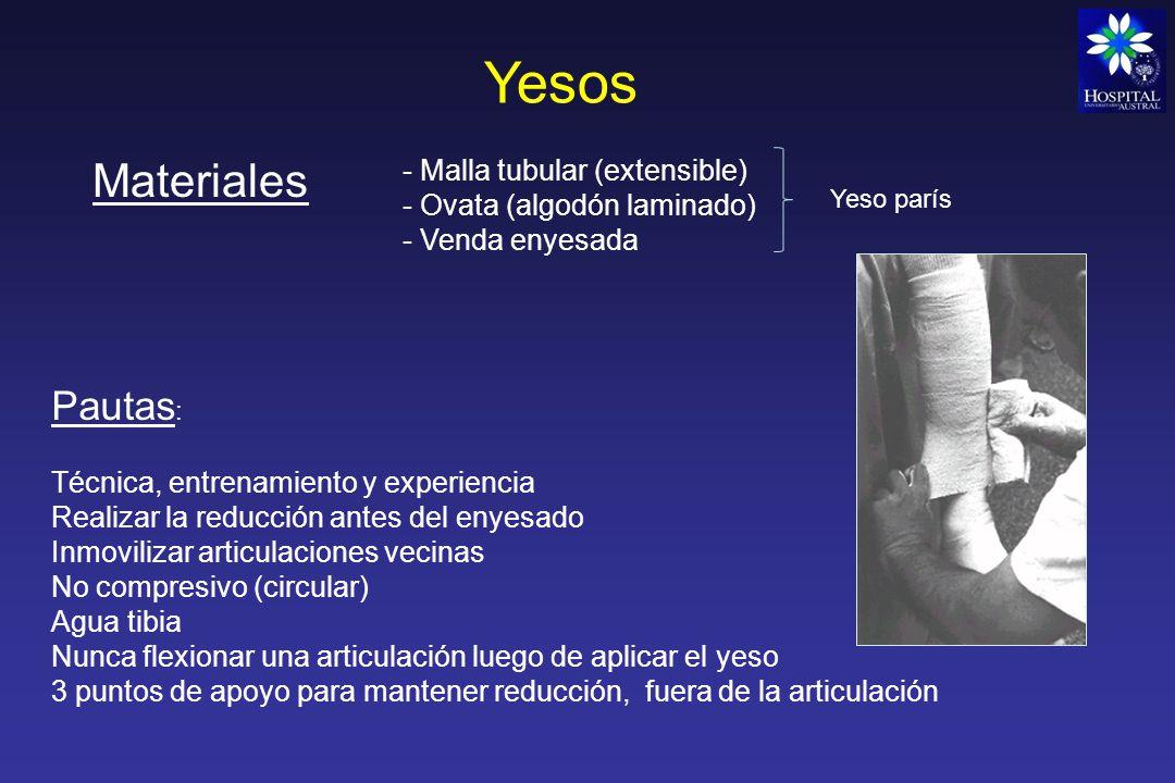 Yesos Materiales Pautas: - Malla tubular (extensible)