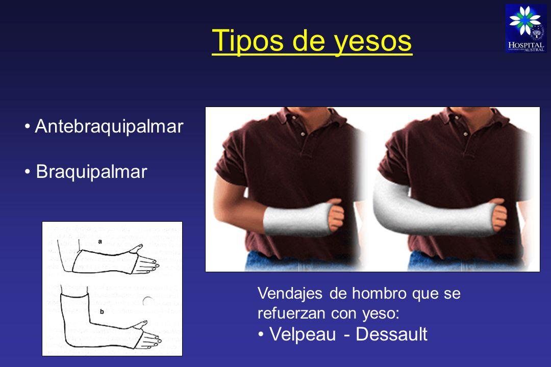 Tipos de yesos Antebraquipalmar Braquipalmar Velpeau - Dessault