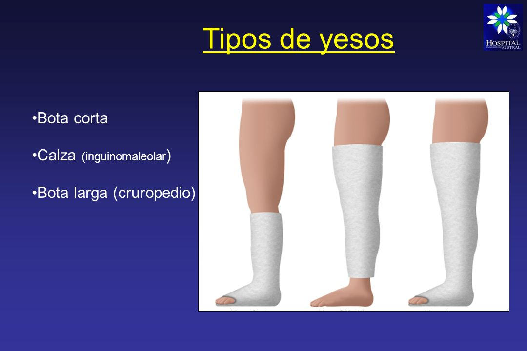 Tipos de yesos Bota corta Calza (inguinomaleolar)