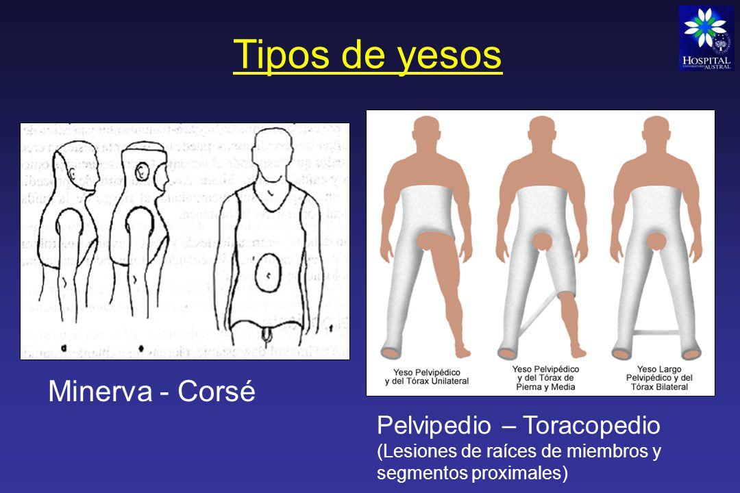 Tipos de yesos Minerva - Corsé Pelvipedio – Toracopedio