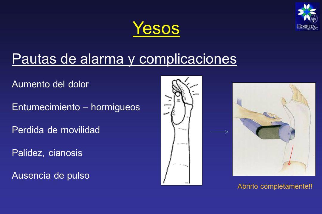 Yesos Pautas de alarma y complicaciones Aumento del dolor