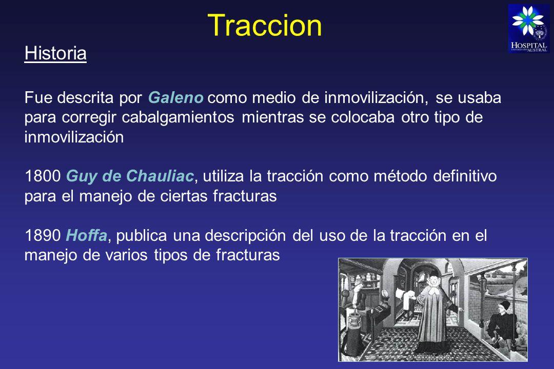 Traccion Historia.