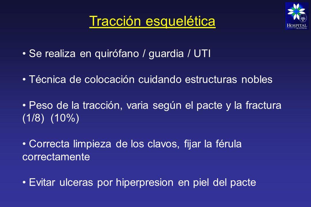Tracción esquelética Se realiza en quirófano / guardia / UTI