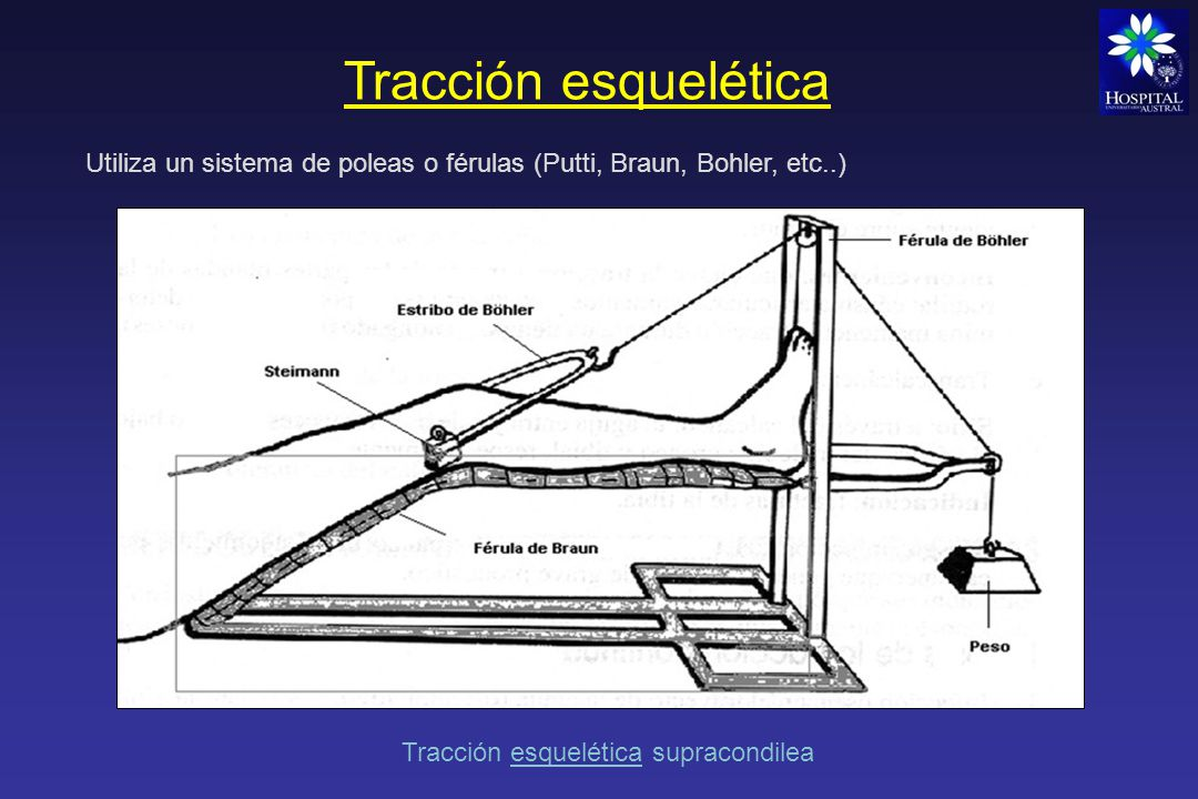 Tracción esquelética Utiliza un sistema de poleas o férulas (Putti, Braun, Bohler, etc..) Tracción esquelética supracondilea.
